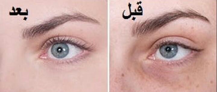 علاج نهائي للهالات السوداء حول العين